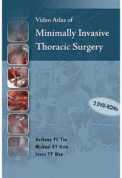 Video Atlas of Minimally Invasive Thoracic Surgery (DVDs with Book) (Individual)